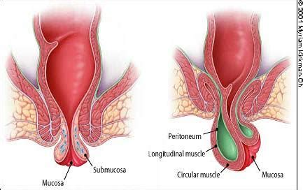 what causes large s pics with hemorrhoids picture 2