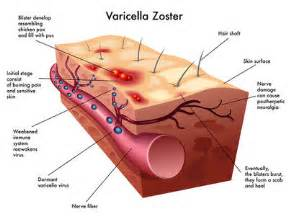 herpes zoster virus picture 5