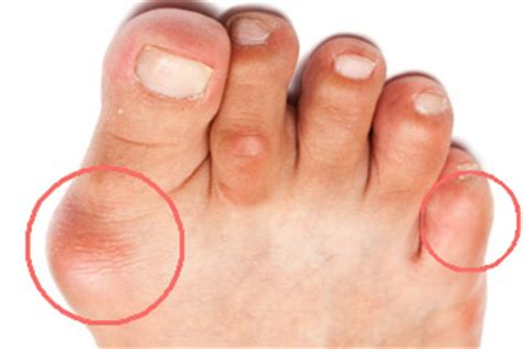 laser fungus nail treatment picture 7