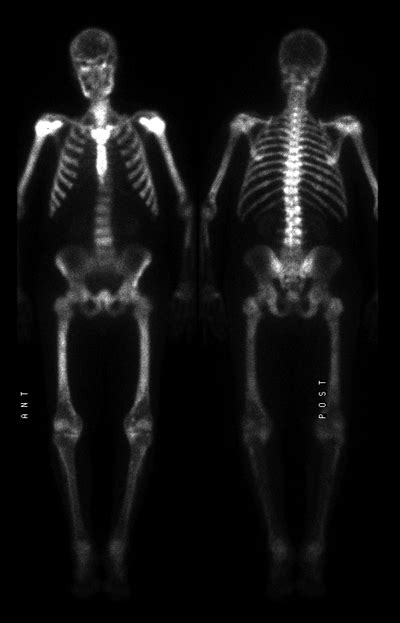 full bladder on a bone scan picture 13