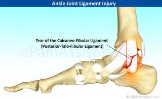 ankle joint pain picture 9