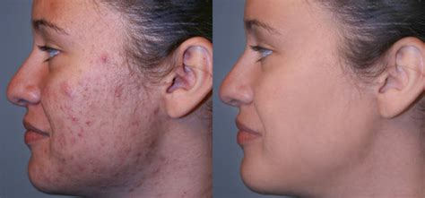 acne scar treatments in houston picture 10