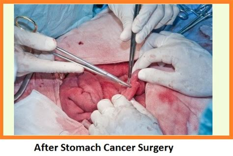 can you drink whiskey after gallbladder surgery picture 10