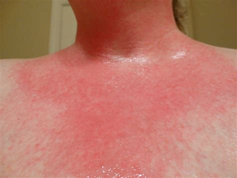 allergic reaction skin rashes picture 1