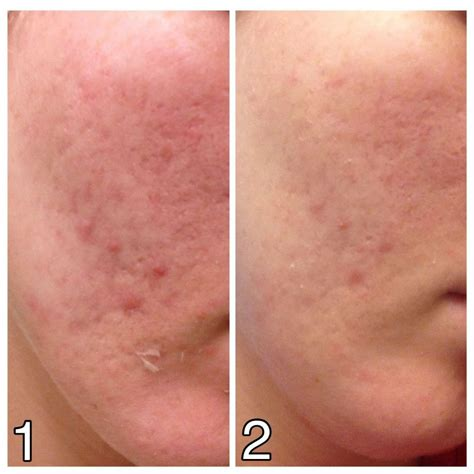 where to buy muac lactic ling solution in picture 3