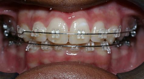 clear teeth picture 15