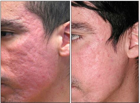 acne scar treatment in sf picture 7