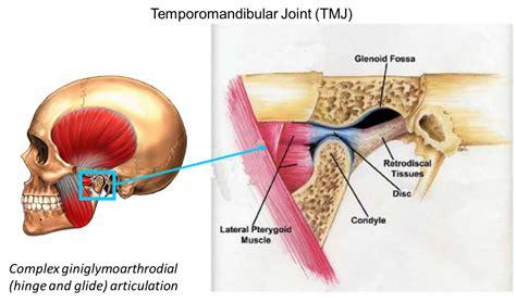 tempormandibula joint painr picture 6