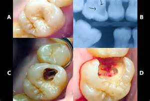 causes for dental problems in aging picture 19