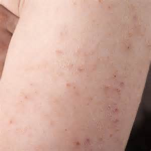 cause hives picture 5