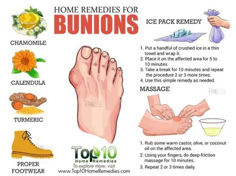 can they put you asleep for bunion surgery picture 10
