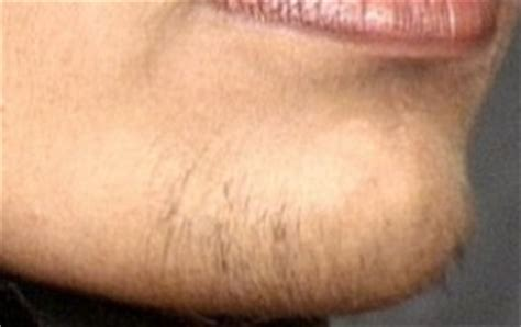 chest hair removal picture 5