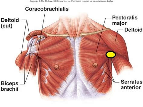 do torn attachments of the pectoralis muscle need picture 3