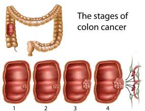 colon carcinoma picture 1
