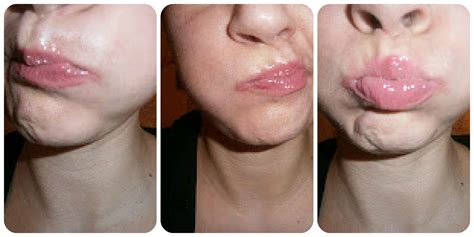 fuller lips without surgery picture 9