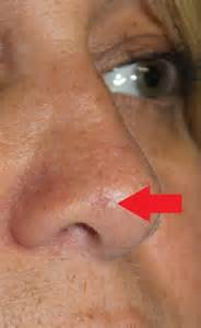 nose skin cancer pictures picture 7