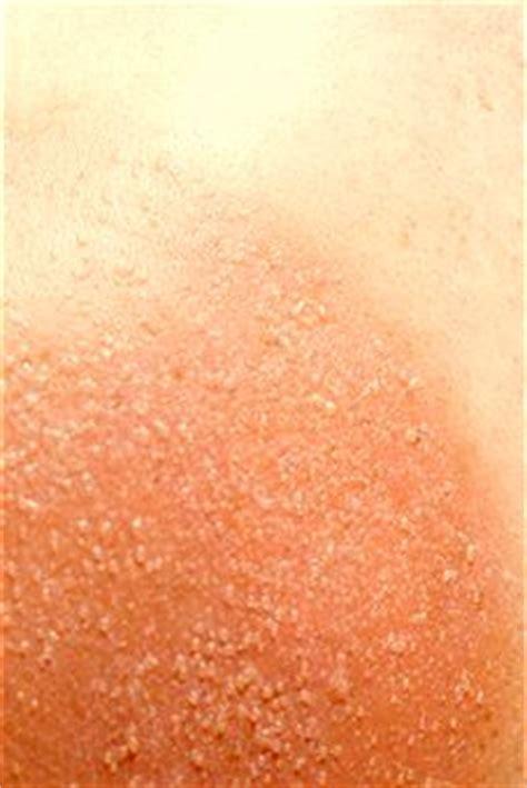sunburn pain relief picture 6