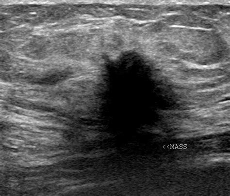 dark fluid in thyroid picture 6
