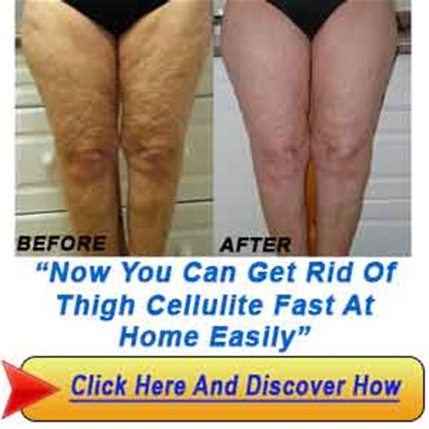 how to get rid of cellulite picture 10
