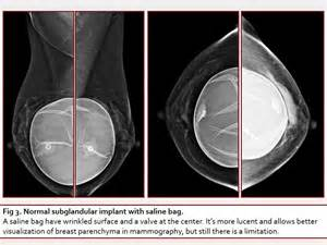 breast augmentation and complications and hematoma picture 8
