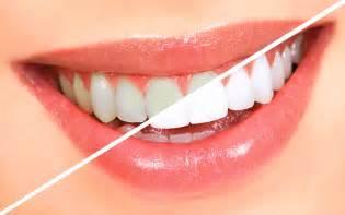 arctic teeth whitening picture 9