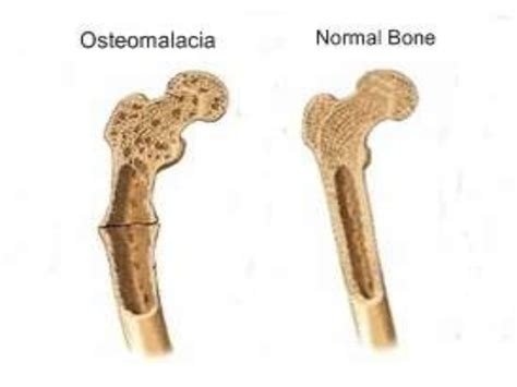 menopause joint pain picture 6