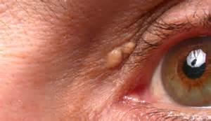 bilirubin itchy skin picture 7