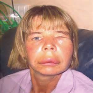 intestinal angioedema picture 3