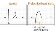 abnormal ekg and high blood pressure picture 2