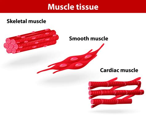 muscle problems picture 6