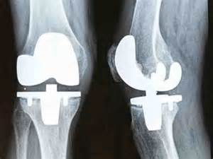 cost of knee joint replacement picture 7