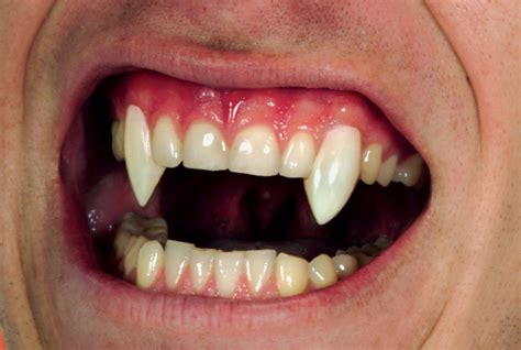 custom teeth picture 7