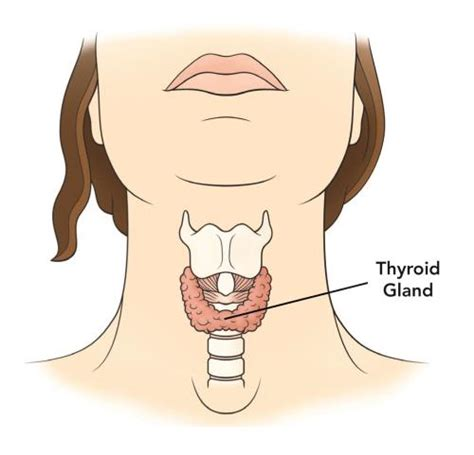 what do you do for an enlarged thyroid picture 3