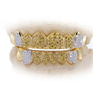 diamond teeth sale picture 7