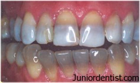 discolored teeth enamel effacia picture 2