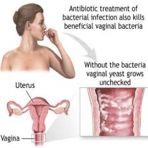 what causes yeast infections picture 10