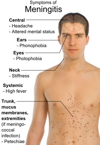symptoms of bacterial meningitis picture 1