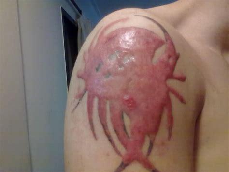 acne scar coverup picture 3