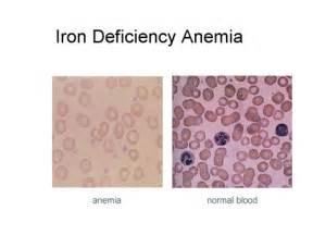 hemorrhoid anemia picture 5