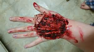 open skin wound picture 5
