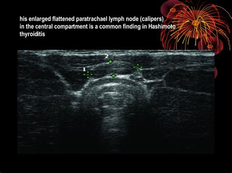 what is heterogeneous hypervascular thyroid gland picture 11