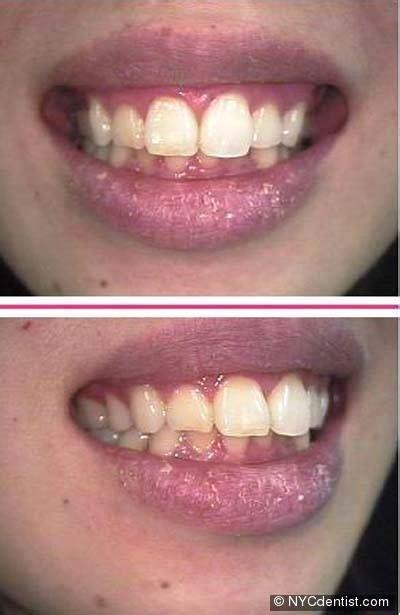 clotrimazole blistered lips picture 6