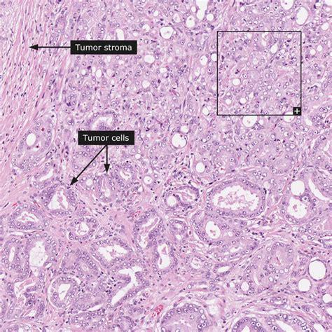 adenocarcinoma survival rate prostate picture 13