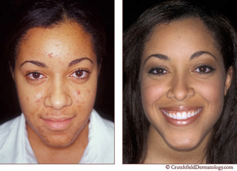 creams for acne in african americans picture 8