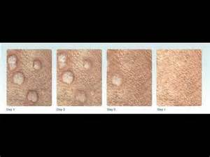 standard process for genital warts picture 18