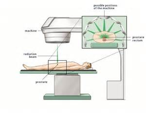 Radiation treatment for prostate cancer picture 14