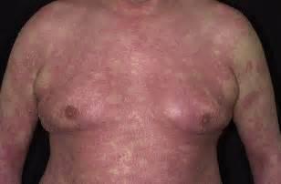 rubbing alcohole acne picture 5