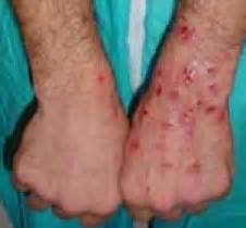 bladder infection and open sores on hands picture 9