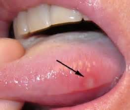 does garlic help white spot on tongue picture 1