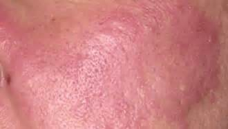 cure skin cancer naturally picture 10